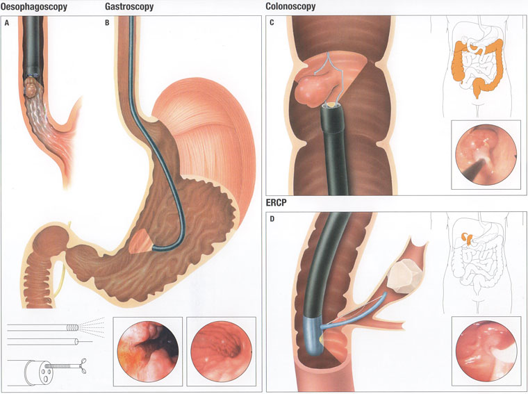 endoscopy-illustration
